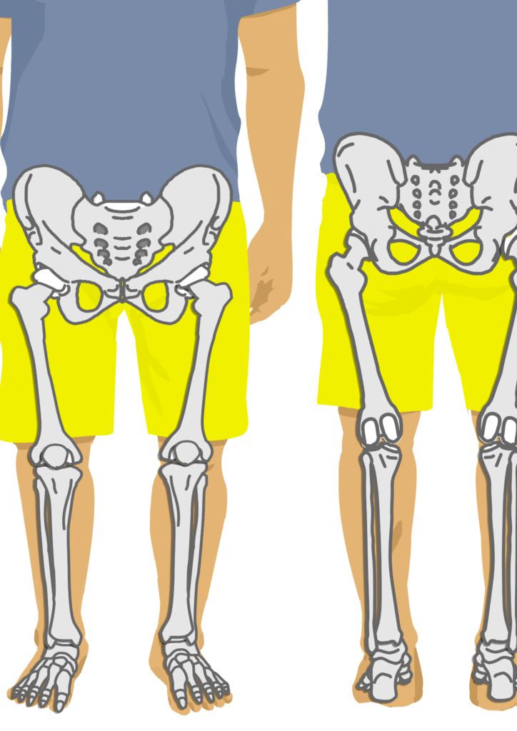 大腿骨、脛骨、腓骨、足の骨